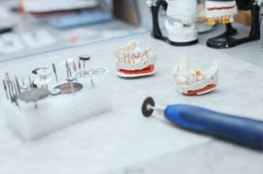 Zahntechniker in Münster mit Vor-Ort-Service für Zahnärzte