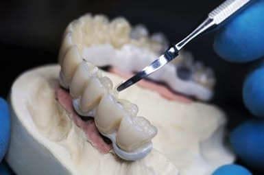 Suprakonstruktionen auf Implantaten in Münster – Zahnersatz anfertigen lassen