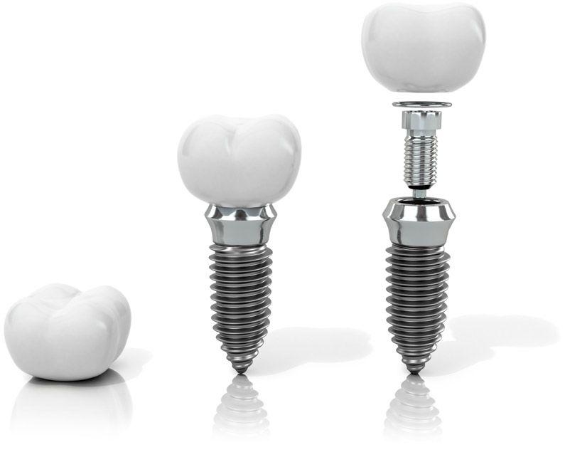 Zahnprotesen und Implantate